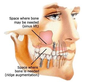 schlimmer sinuslift oder implantat