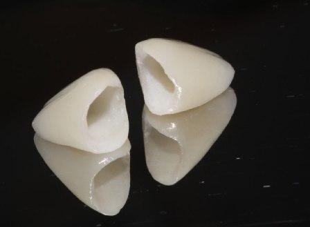 Sensodyne fluoride pasta za zube